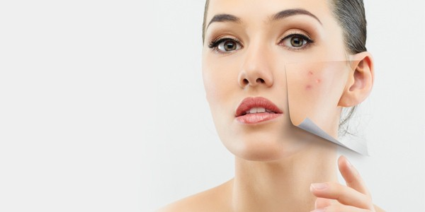 Pimple Scabs And How To Treat Them